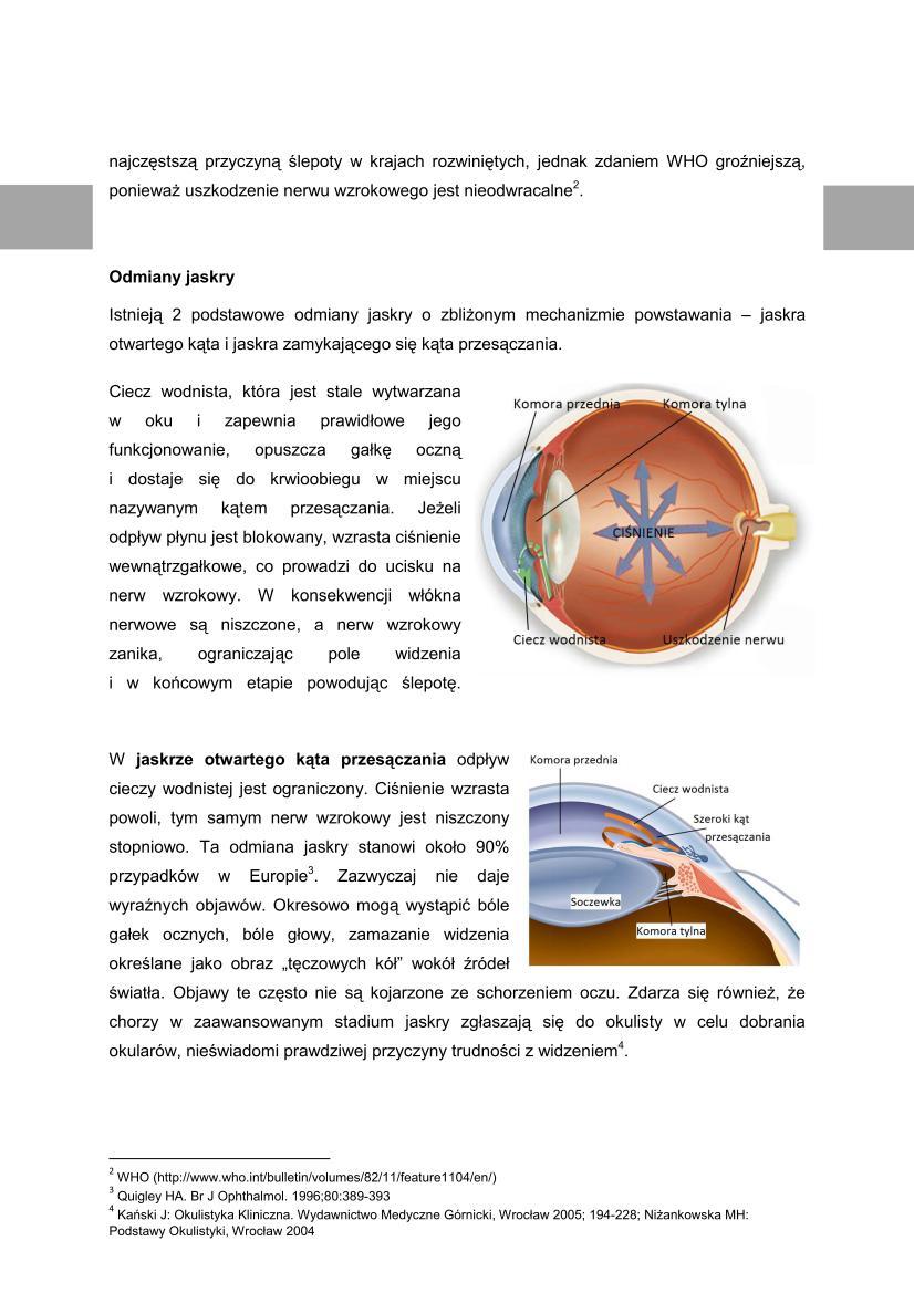 Microsoft Word Viewer - Jaskra - podstawowe informacje o problemie_02